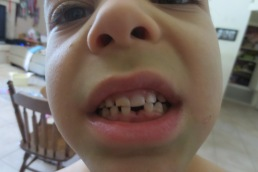 Oct Hayden lost tooth